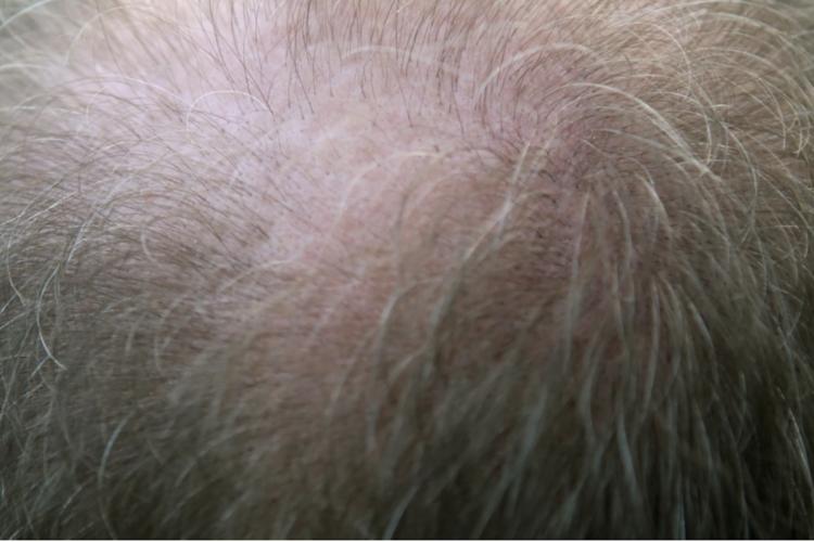 Harga Transplantasi Rambut